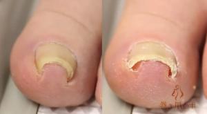 ingroei nagel podotherapie basemans